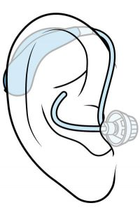 open fit hearing aid
