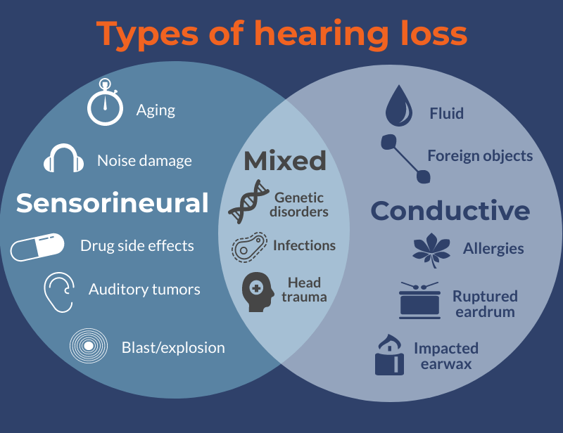 Five Types Of Hearing Loss U00ab Soundlife Hearing Center Manual Guide